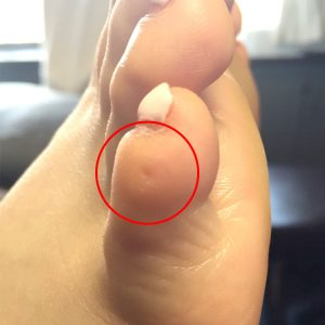 右足施術後