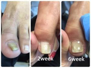 重度の巻き爪補正左足の様子 スタート時~6週間後