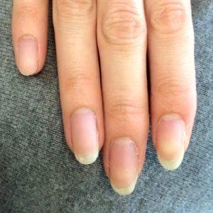 手足口病の後遺症(自爪状態:重度)自爪育成コース終了後