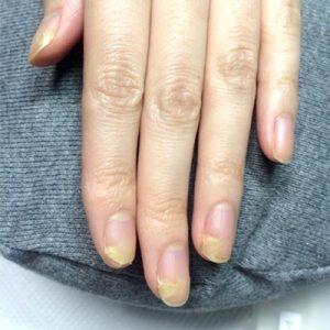 手足口病の後遺症(自爪状態:重度)自爪育成コース施術前