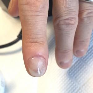 むしり癖による爪の形のお悩み(自爪状態:重度)自爪育成4回目の施術後