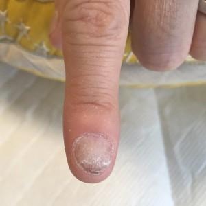 むしり癖による爪の形のお悩み(自爪状態:重度)自爪育成4回目の施術前