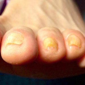 角質による爪の変形 施術後