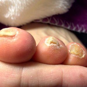 角質による爪の変形 施術前