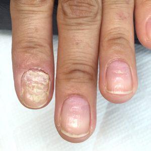 皮膚疾患の後遺症による爪の変形(自爪状態:中度)自爪育成施術前