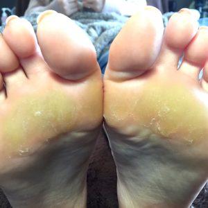 たくさんの角質がたまり、ガチガチになった足裏 施術前の足裏