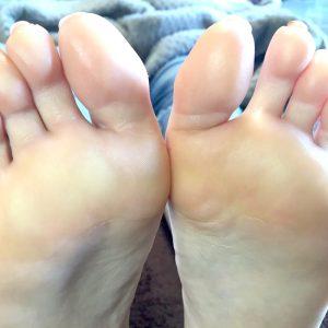 たくさんの角質がたまり、ガチガチになった足裏 2回目施術後の足裏