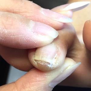 爪の溝に溜まった角質 施術前