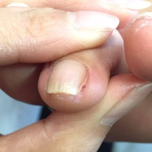 爪の溝に溜まった角質 施術後