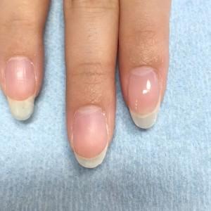 欠けた爪の補修 施術後