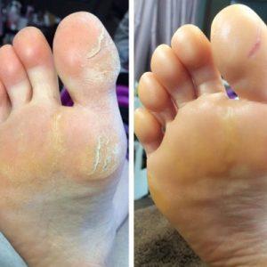 ガチガチになった足裏の角質 1回目:左(施術前)⇒右(施術後)