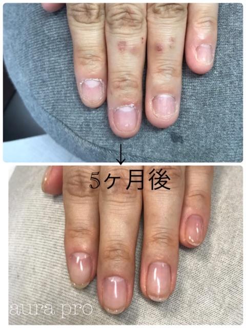 自爪育成で爪が成長