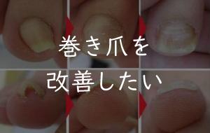 写真:巻き爪を改善したい