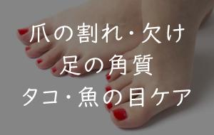 写真:爪の割れ・欠け・足の角質・タコ・魚の目ケアをしたい
